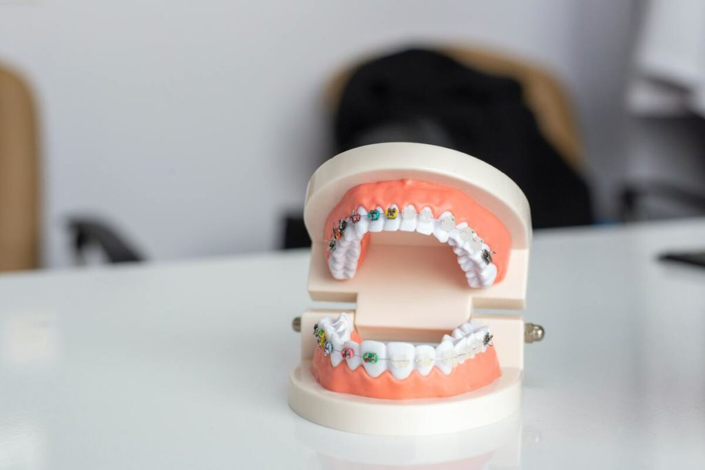 model of teeth with braces
